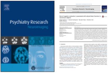 中井研究員、阿部准教授の論文が『Psychiatry Research: Neuroimaging』に掲載されました