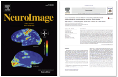 "Abe and Nakai's new paper published in ""Neuroimage"""