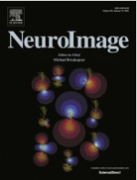 阿部修士准教授らの共著論文が『NeuroImage』に出版されました