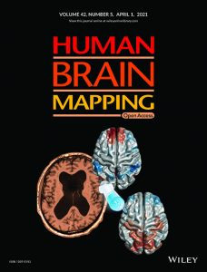 A Paper by Associate Professor Nobuhito Abe and Colleagues has been Published in <span>Human Brain Mapping</span>