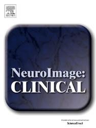 阿部准教授らの共著論文が『NeuroImage: Clinical』に出版されました